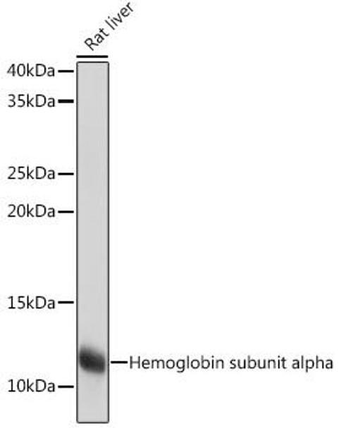 Signal Transduction Antibodies 3 Anti-Hemoglobin subunit alpha Antibody CAB9293