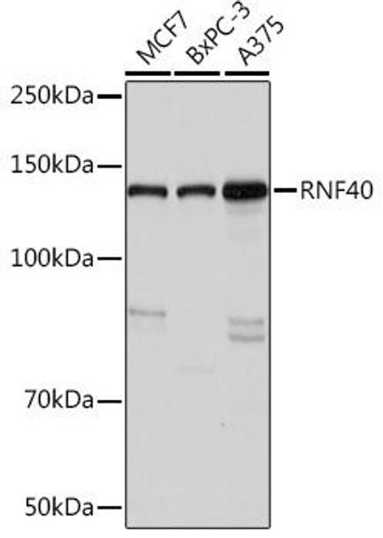 Signal Transduction Antibodies 3 Anti-RNF40 Antibody CAB9598
