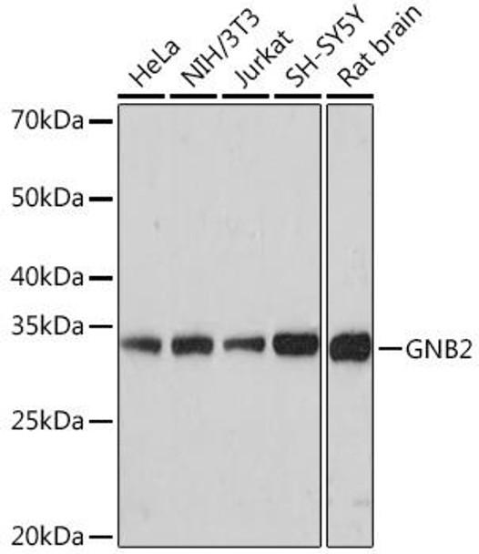 Cell Biology Antibodies 17 Anti-GNB2 Antibody CAB9643
