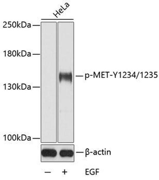 Cell Biology Antibodies 17 Anti-Phospho-MET-Y1234/1235 Antibody CABP0533