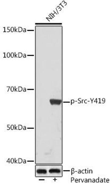 Cell Biology Antibodies 14 Anti-Phospho-Src-Y419 Antibody CABP1027