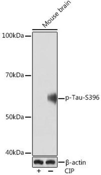 Cell Biology Antibodies 14 Anti-Phospho-Tau-S396 Antibody CABP1028