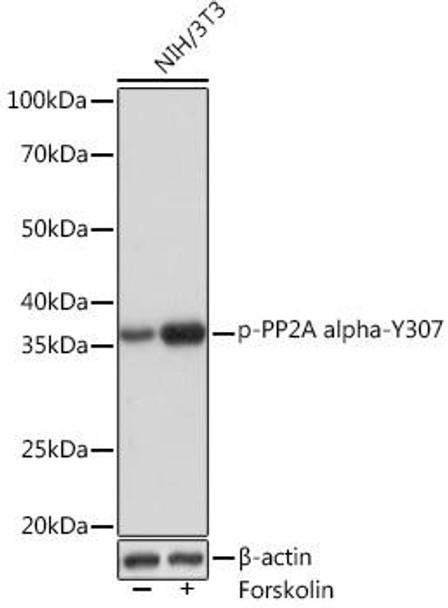 Cell Biology Antibodies 14 Anti-Phospho-PP2A alpha-Y307 Antibody CABP1043