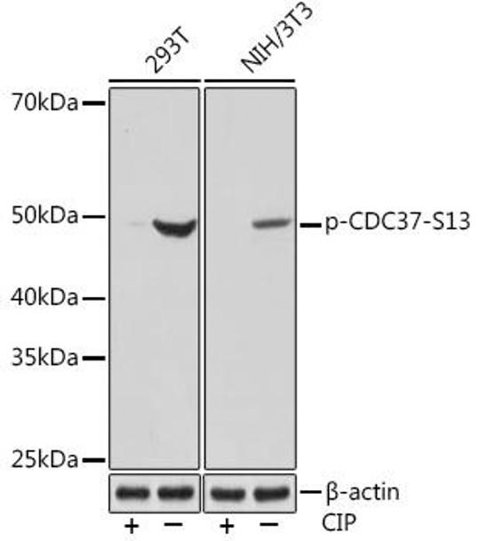Cell Biology Antibodies 14 Anti-Phospho-CDC37-S13 Antibody CABP1141