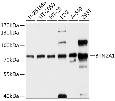 Anti-BTN2A1 Antibody (CAB10418)