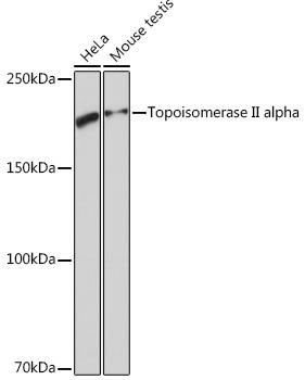 Topoisomerase II alpha Rabbit Monoclonal Antibody (CAB4389)