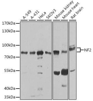 Anti-NF2 Antibody [KO Validated] (CAB0739)