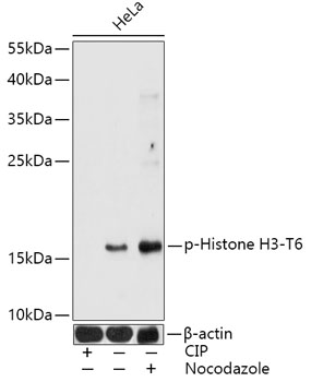 Phospho-Histone H3-T6 Rabbit Polyclonal Antibody (CABP0899)