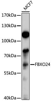 FBXO24 Rabbit Polyclonal Antibody