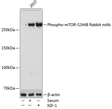 Phospho-mTOR-S2448 Rabbit Monoclonal Antibody (CABP0115)