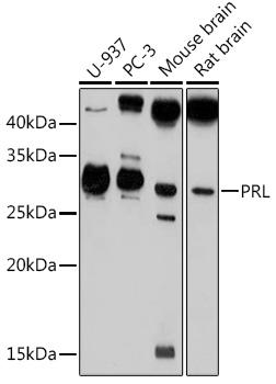 PRL Rabbit Polyclonal Antibody (CAB1618)