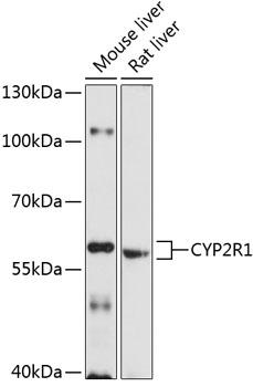 Anti-CYP2R1 Antibody (CAB10470)
