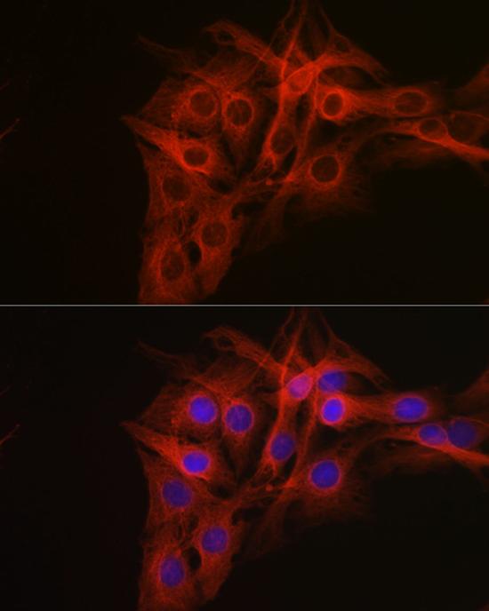 Anti-Beta-Tubulin Antibody (CABC008)