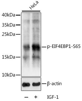 Anti-Phospho-EIF4EBP1-S65 Antibody (CABP0032)