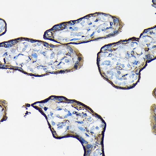 Anti-CD98 Antibody [KO Validated] (CAB19880)