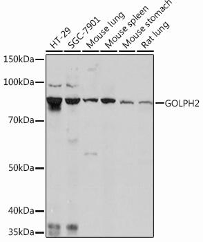GOLPH2 Rabbit Monoclonal Antibody