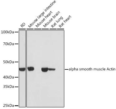 Anti-alpha smooth muscle Actin Rabbit Monoclonal Antibody (CAB17910)