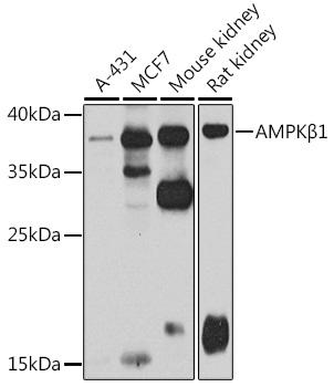 AMPKBeta1 Rabbit Polyclonal Antibody (CAB7921)