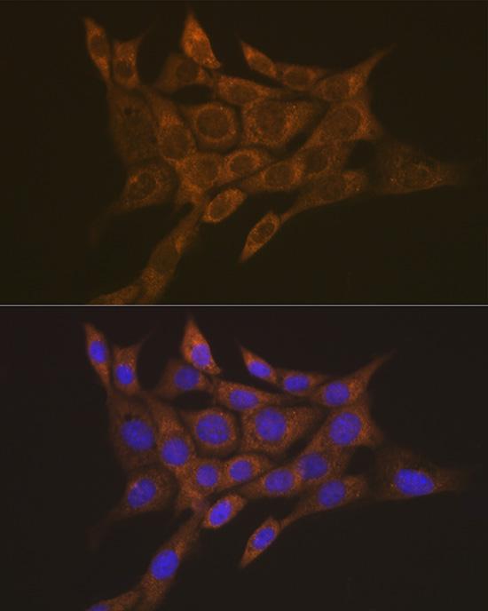 TRIM21 Rabbit Polyclonal Antibody (CAB1957)
