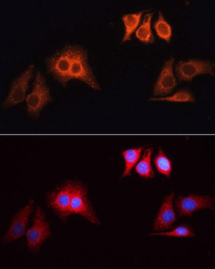 Anti-Rhodamine (TRITC) Goat Anti-Rabbit IgG (H+L) Antibody (CABS040)