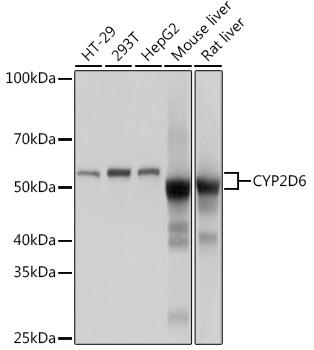CYP2D6 Rabbit Monoclonal Antibody (CAB9562)