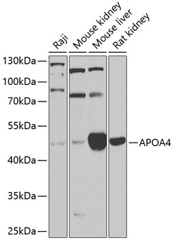 Apolipoprotein A-IV Polyclonal Antibody (CAB9792)