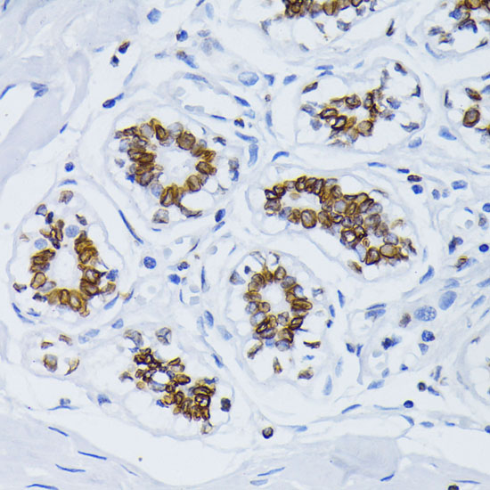 Anti-Lamin B1 Antibody [KO Validated] (CAB1910)