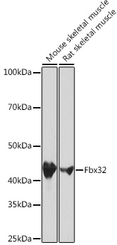Fbx32 Rabbit Monoclonal Antibody (CAB3699)