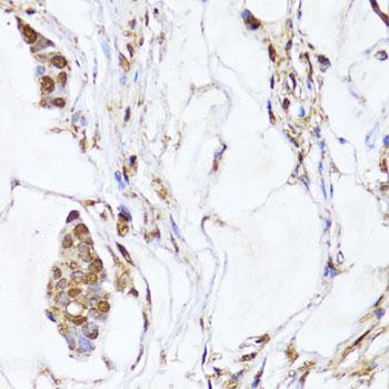 Anti-EGLN1/EGLN2 Antibody (CAB10342)