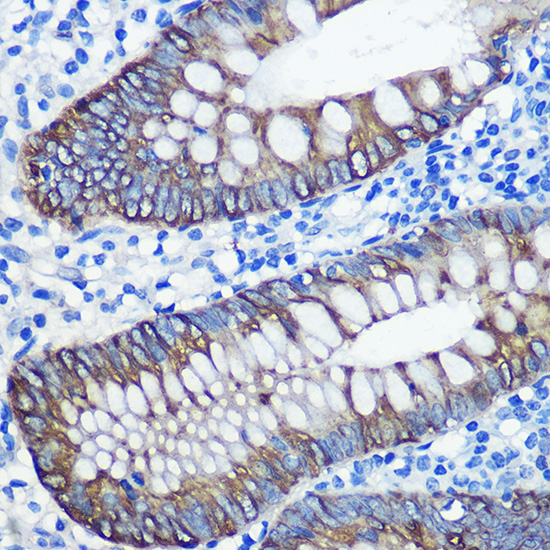 Anti-Cytokeratin 8 Antibody [KO Validated] (CAB1024)