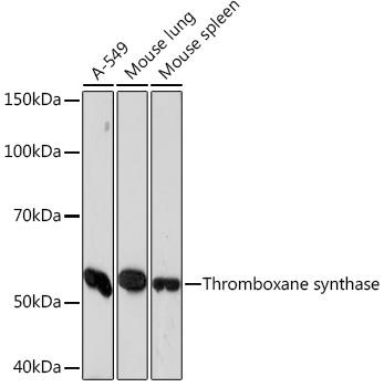 Thromboxane synthase Rabbit Monoclonal Antibody (CAB5173)