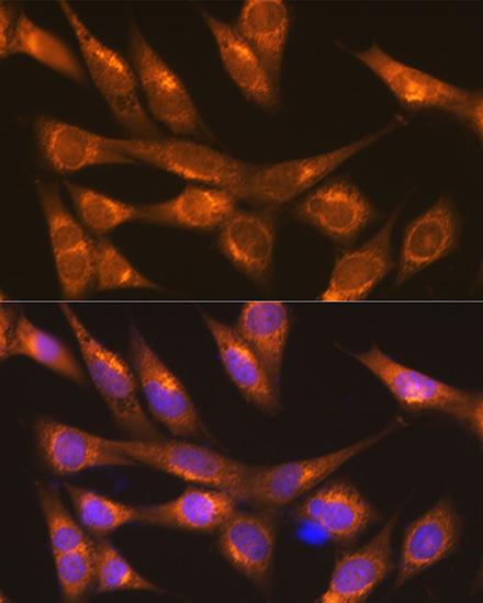 Anti-LMAN1 Antibody (CAB10440)