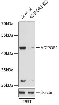 [KO Validated] ADIPOR1 Rabbit Polyclonal Antibody (CAB18045)