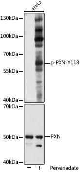 Anti-Phospho-PXN-Y118 Antibody (CABP1057)