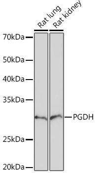 PGDH Rabbit Monoclonal Antibody (CAB5024)