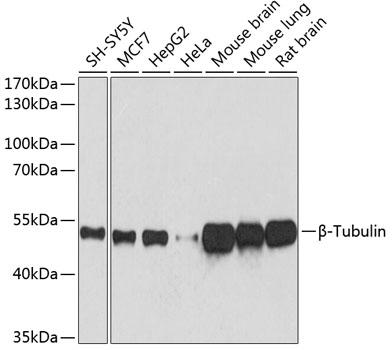 Anti-Beta-Tubulin Mouse Monoclonal Antibody (CABC021)