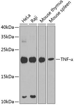 TNF-Alpha Rabbit Polyclonal Antibody (CAB11534)