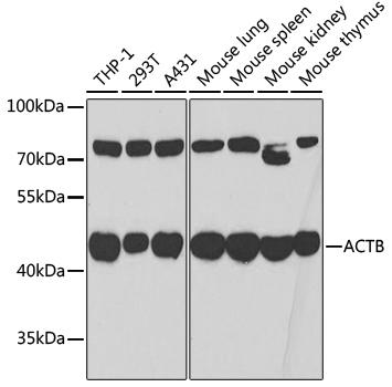 Anti-Beta Actin Antibody (CABC006)
