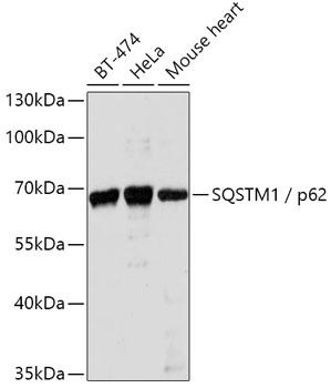 SQSTM1 / p62 Rabbit Polyclonal Antibody (CAB11250)