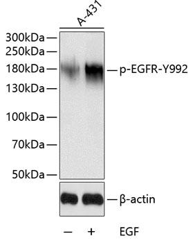 Phospho-EGFR-Y992 pAb (CABP0026)