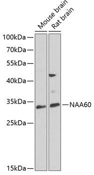 NAA60 Rabbit Polyclonal Antibody (CAB7386)