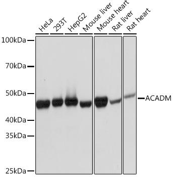 ACADM Rabbit Monoclonal Antibody (CAB4567)