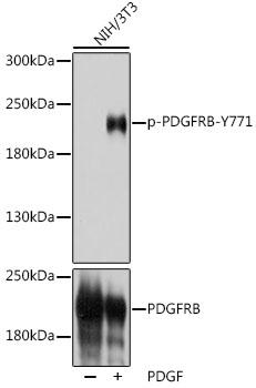 Anti-Phospho-PDGFRB-Y771 Antibody (CABP1062)