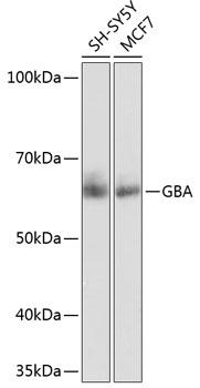 GBA Rabbit Monoclonal Antibody (CAB19057)