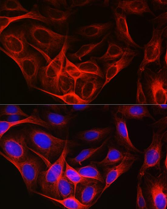 Anti-Tubulin alpha 1b Antibody (CABC025)