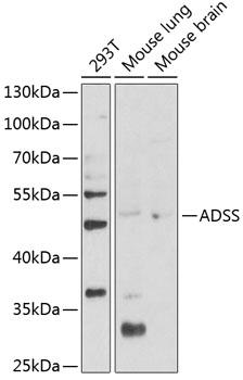 ADSS Rabbit Polyclonal Antibody (CAB12398)