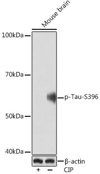 Anti-Phospho-Tau-S396 Antibody (CABP1028)