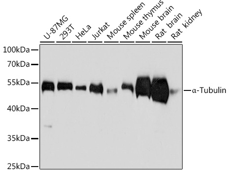 Anti-Alpha-Tubulin Mouse Monoclonal Antibody (CABC012)