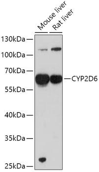 CYP2D6 Rabbit Polyclonal Antibody (CAB1299)