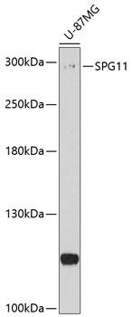 Anti-SPG11 Antibody (CAB10326)